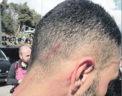 Giocatori del Taranto colpiti con una cazzottiera nell'intervallo della partita contro il Picerno